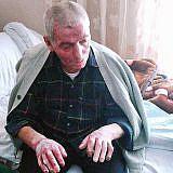 Ein weiterer Patient hat schwere Verbrennungen des Gesichts und der Hände